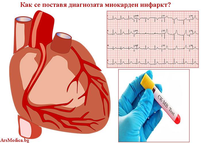 диагноза миокарден инфаркт