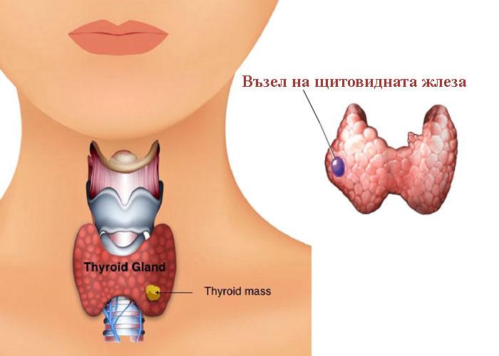 възел на щитовидната жлеза