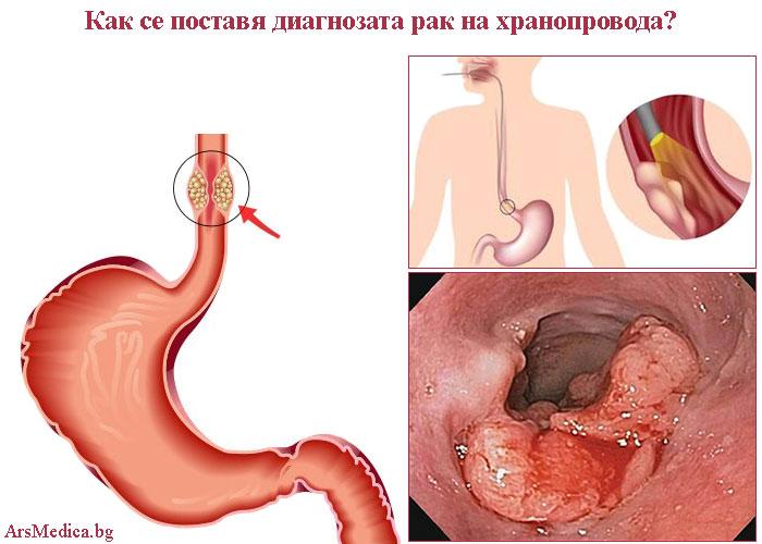 диагностицира рак на хранопровода