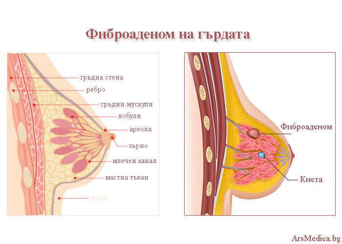 фиброаденом на гърдата