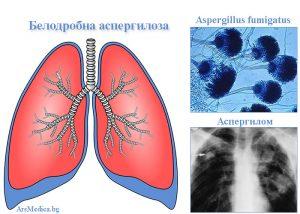 белодробна аспергилоза