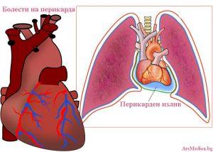 болести на перикарда