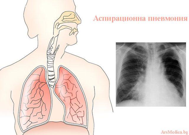 аспирационна пневмония