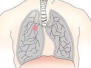 диагностицира рак на белия дроб