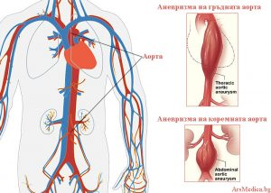 аневризма на аортата