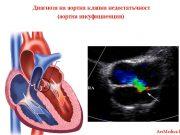 диагноза на аортна клапна недостатъчност