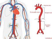 аортит, видове аортит