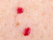 червени петна по кожата