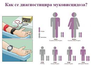 как се диагностицира муковисцидоза