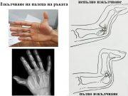 изкълчване на палеца на ръката