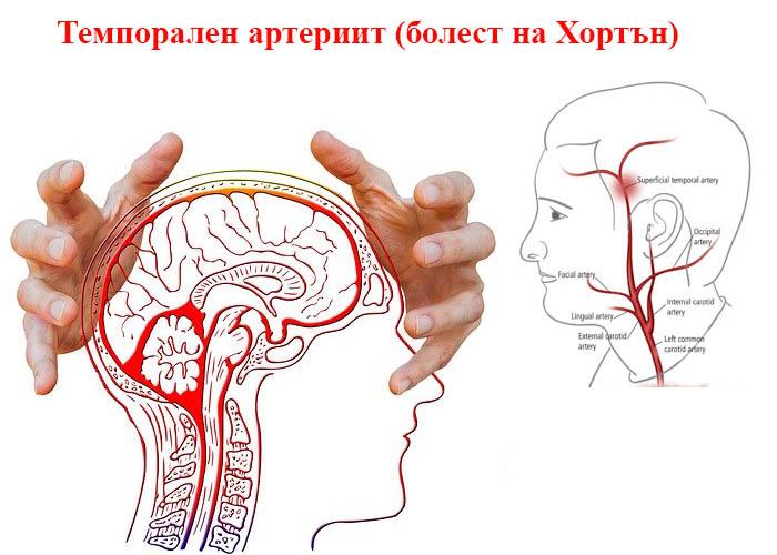 темпорален артериит
