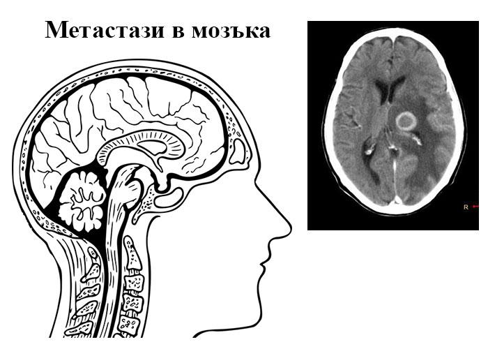 метастази в мозъка