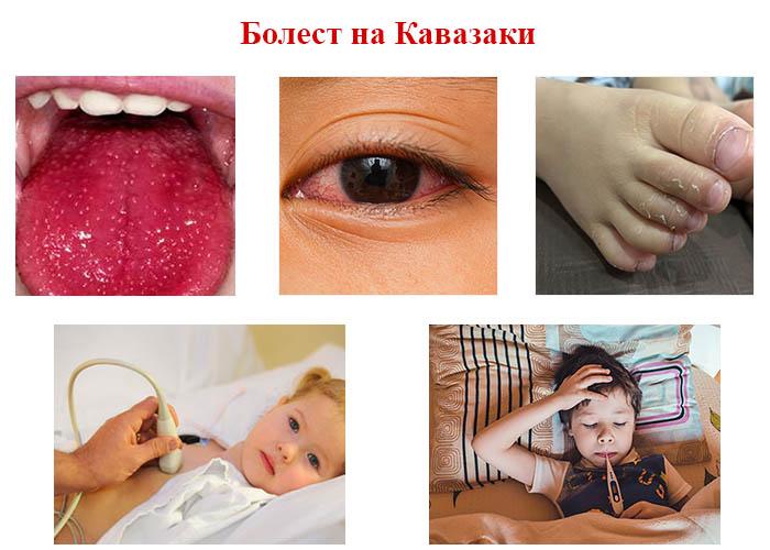 диагностицира болест на Кавазаки