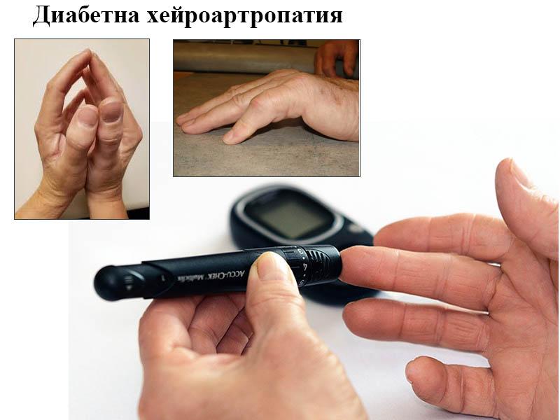 диабетна хейроартропатия