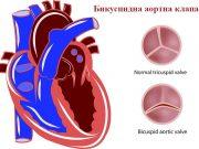 бикуспидна аортна клапа