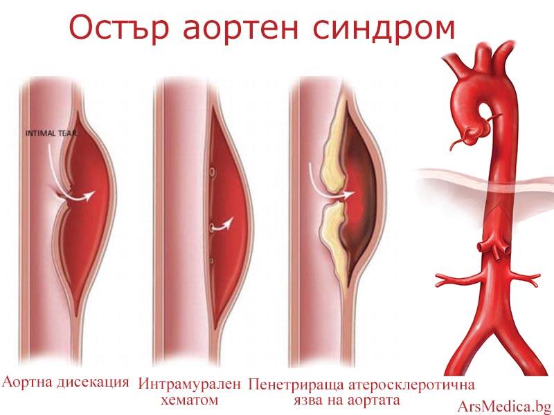 остър аортен синдром