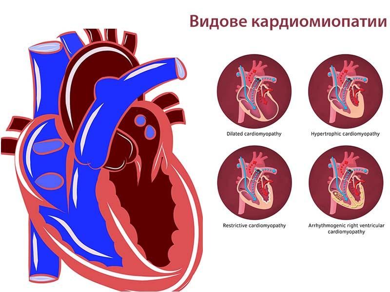 видове кардиомиопатии