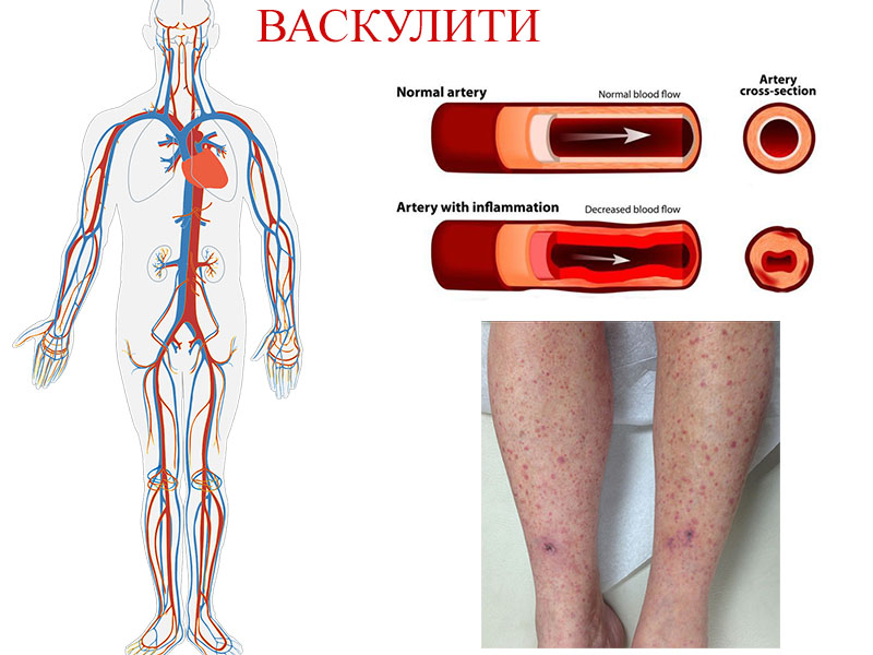 видове васкулити