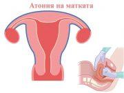 атония на матката