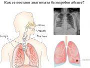 диагнозата белодробен абсцес