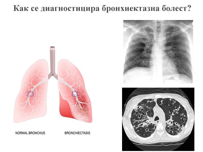 диагностицира бронхиектазна болест