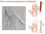 диагностицира болест на Бюргер