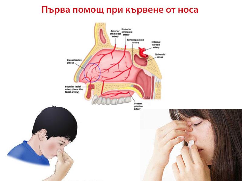 кървене от носа – първа помощ