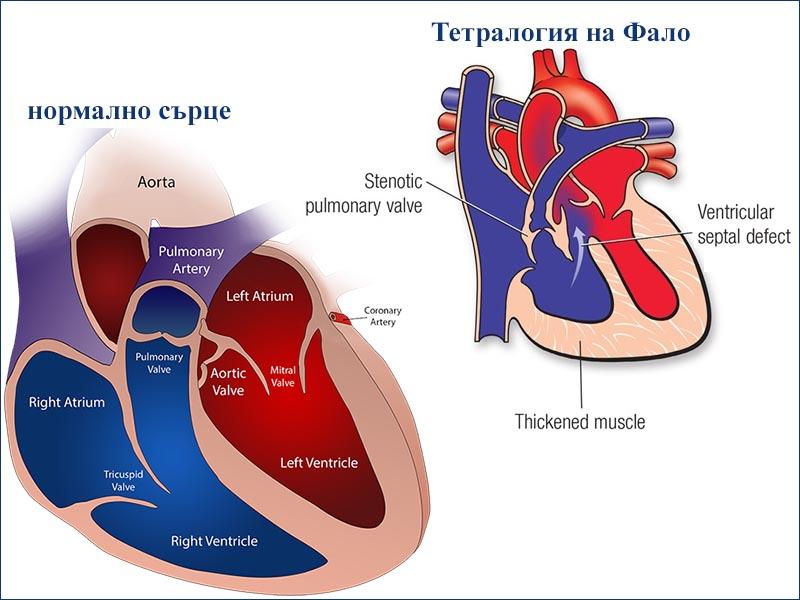 вродени сърдечни пороци - видове