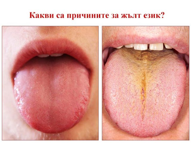 жълт език