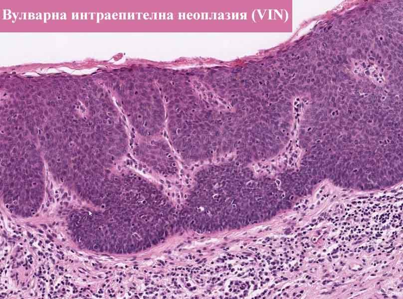 вулварна интраепителна неоплазия