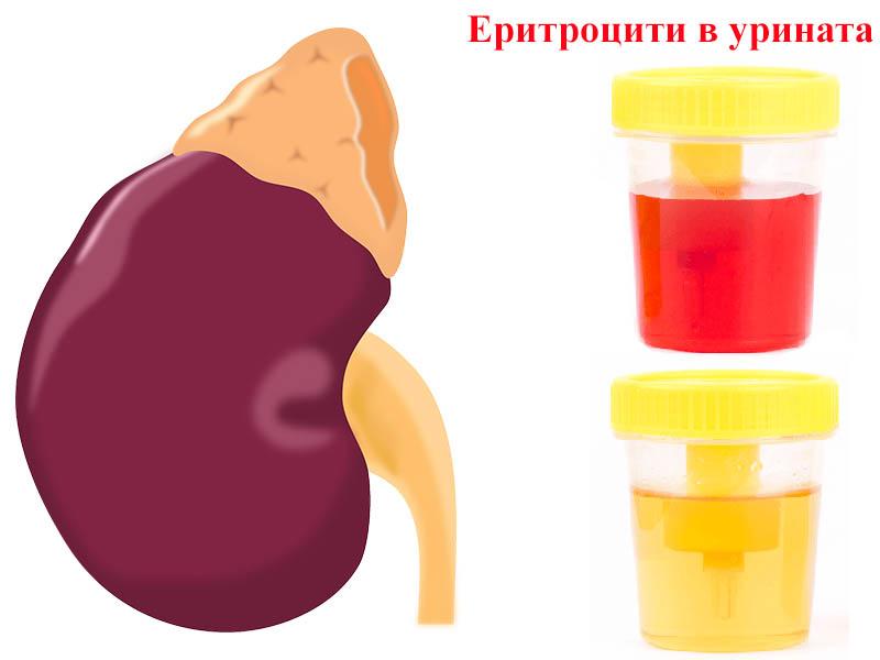еритроцити в урината
