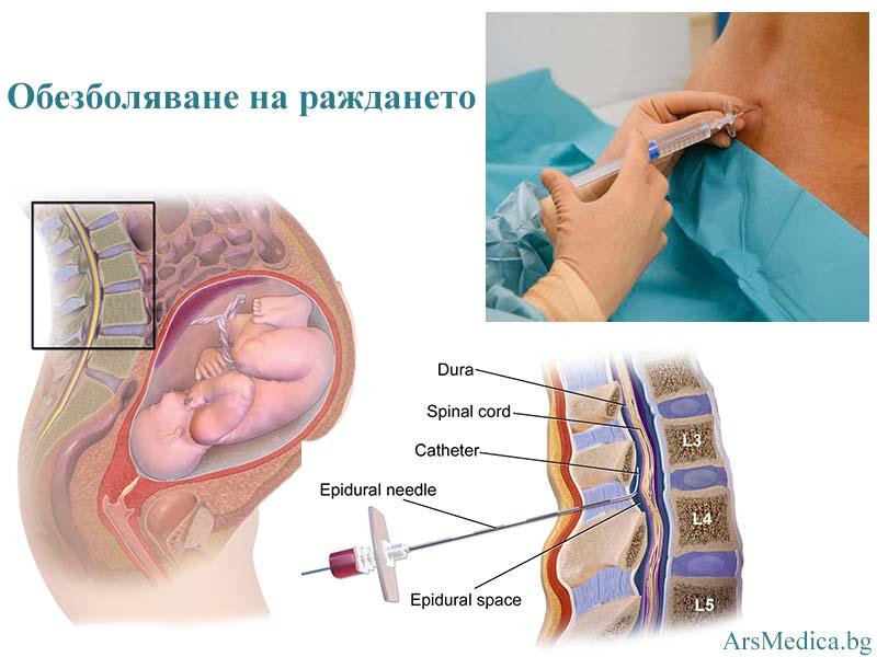 обезболяване на раждането