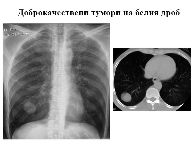 доброкачествени тумори на белия дроб