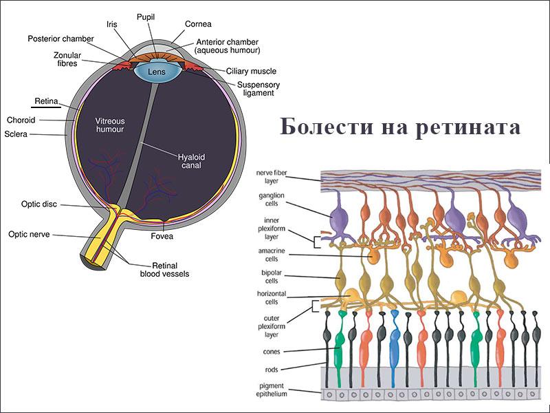 болести на ретината
