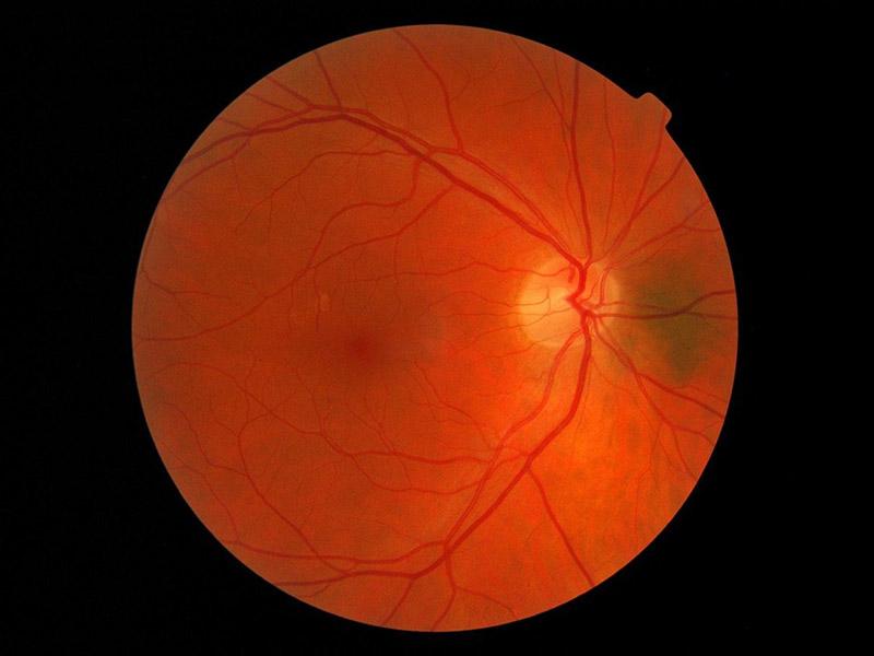 заболявания на ретината