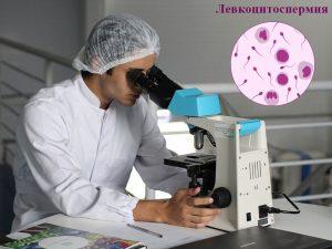 Левкоцити в спермата (левкоцитоспермия, пиоспермия)
