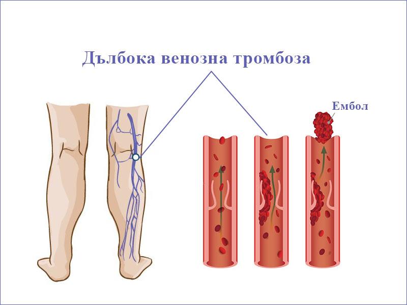 флеботромбоза (дълбока венозна тромбоза)