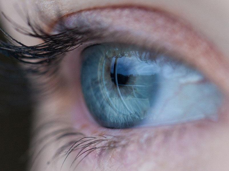 неоваскуларна глаукома