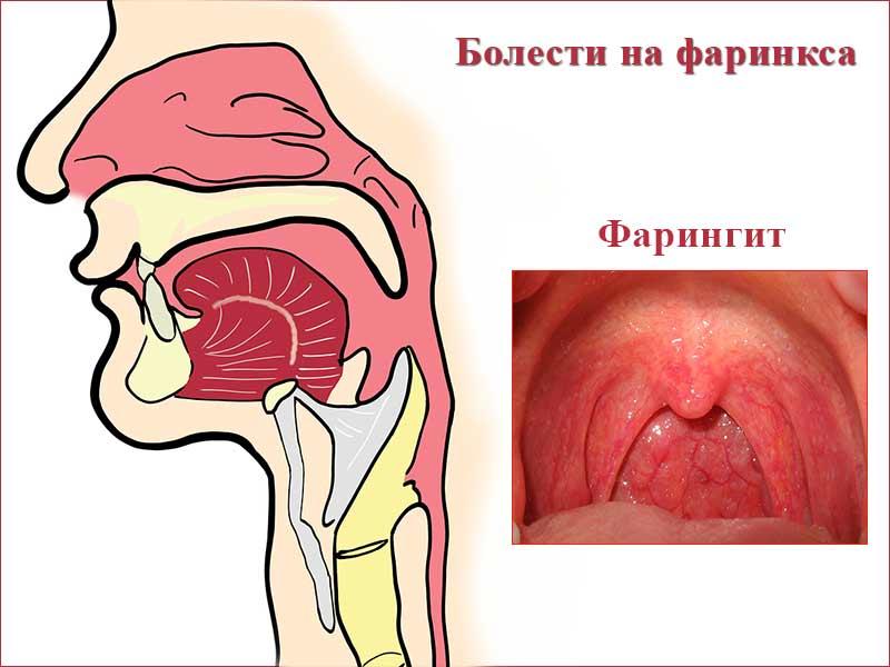 болести на фаринкса