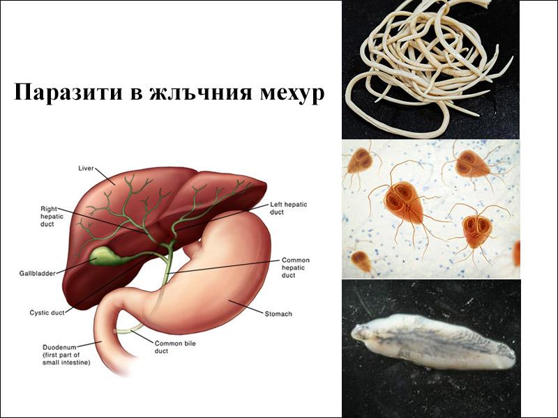 паразити в жлъчния мехур