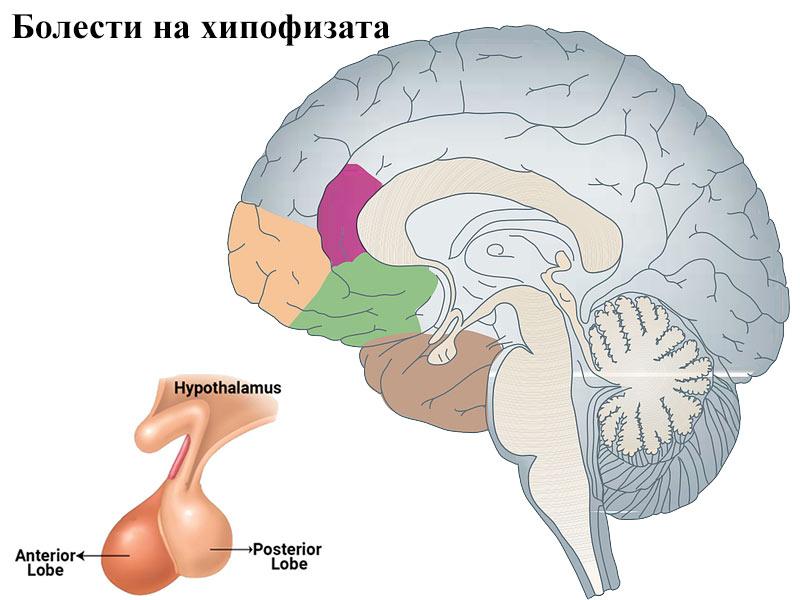 болести на хипофизата