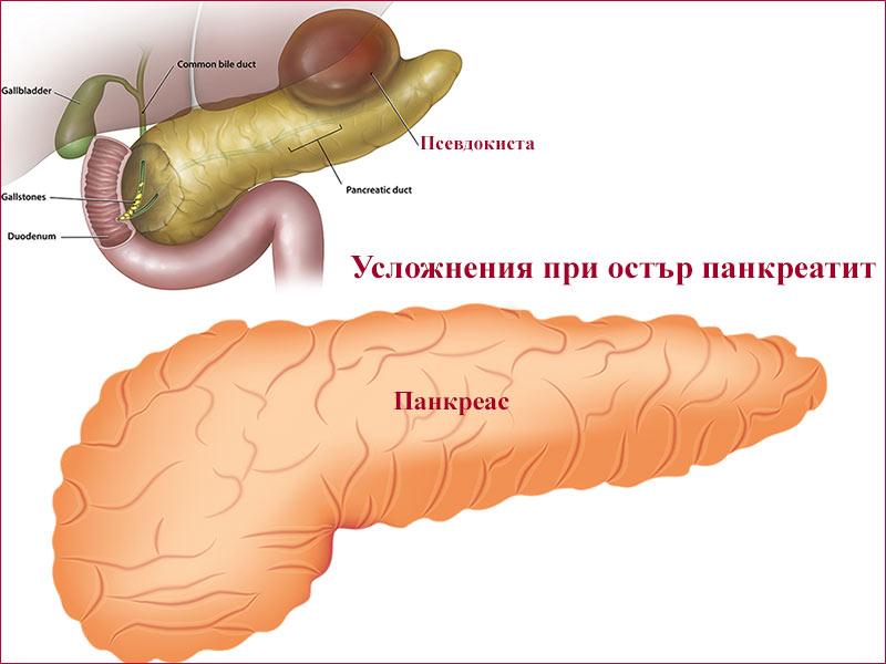 усложнения при остър панкреатит