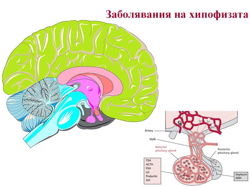 заболявания на хипофизата