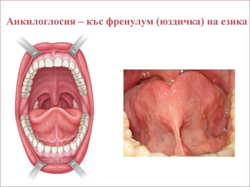 къс френулум (юздичка) на езика