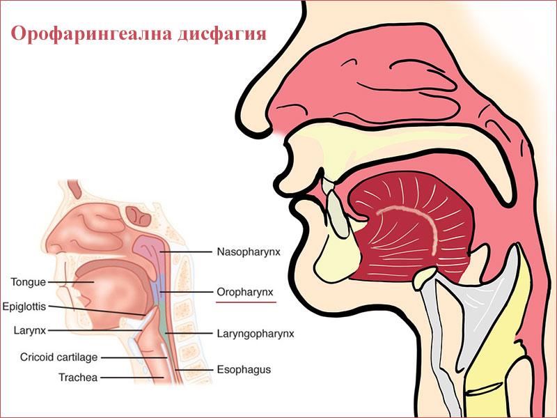орофарингеална дисфагия
