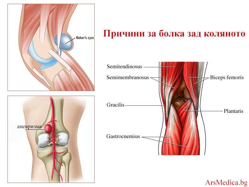 задна колянна болка