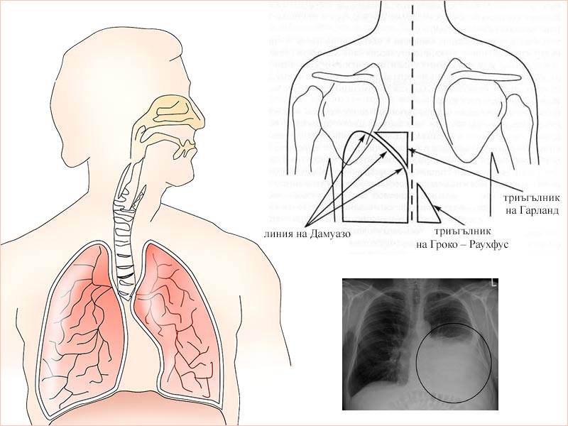 симптоми при плеврален излив