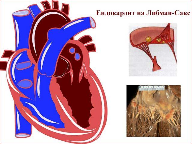 ендокардит на Либман-Сакс