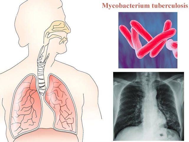 видове туберкулоза