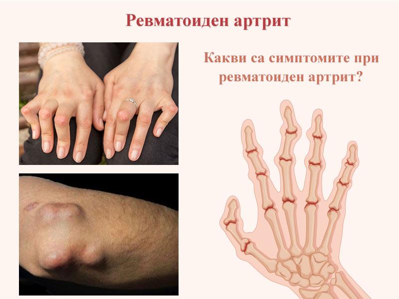 ревматоиден артрит - симптоми